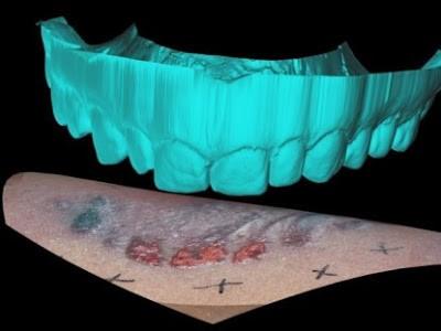 Следы от зубов