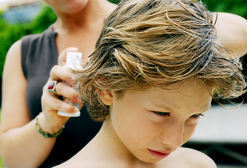 Обработка волос от насекомых