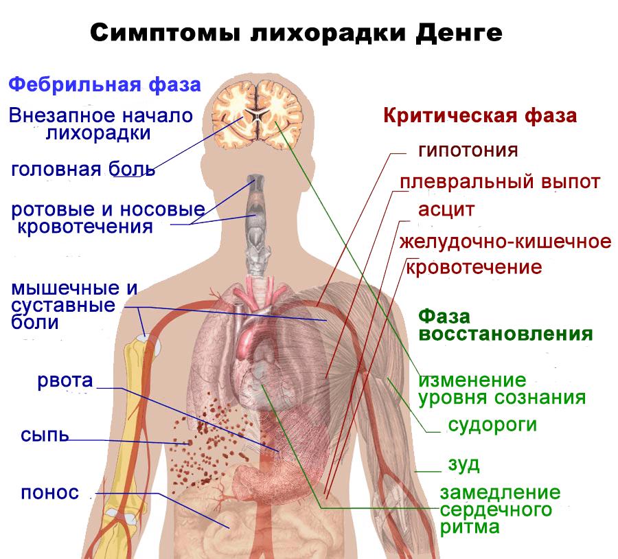 Лихорадка симптомы